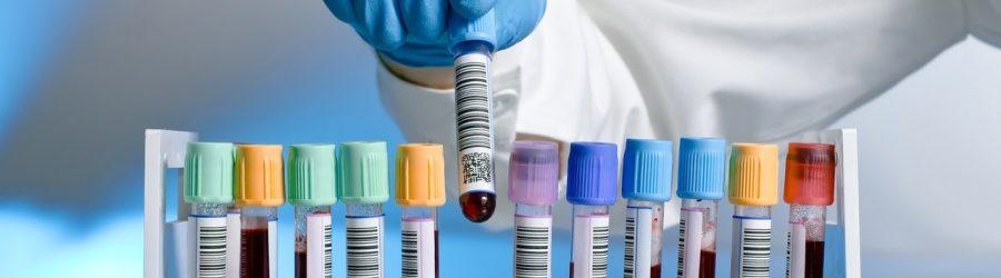 Анализ на гликированный гемоглобин: необходимость проведения, расшифровка, нормы