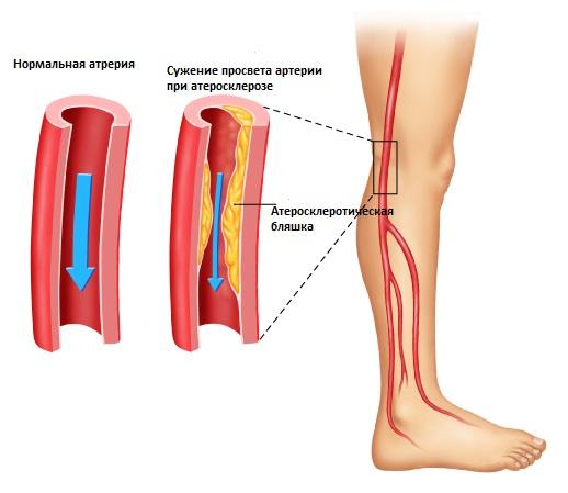 бляшки при атеросклерозе ног