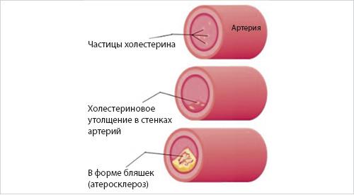 схема гиперхолестеринемии