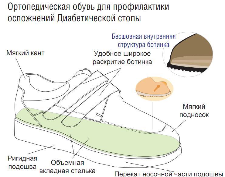 ортопедическая обувь при стопе шарко