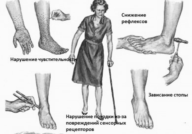 Симптомы диабетической полинейропатии